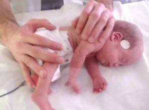 17 de noviembre. Día Mundial del Bebé Prematuro.